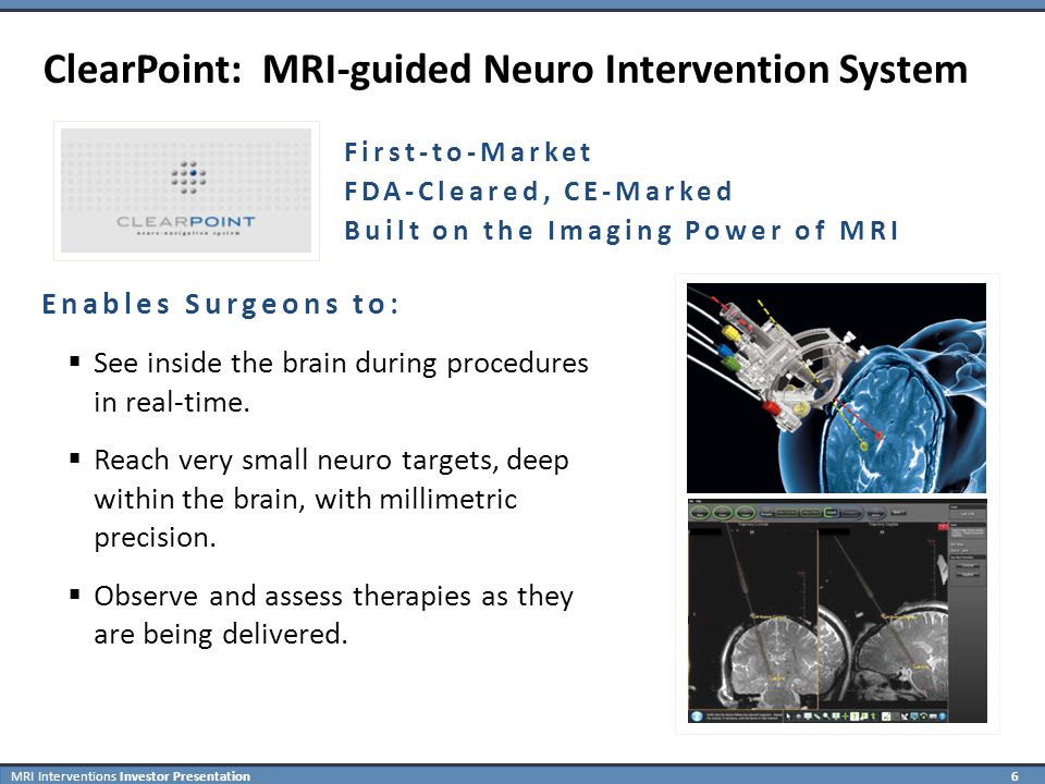 MRI Interventions Investor Presentation 17 Neurosurgeon Comments on ClearPoint Dr.