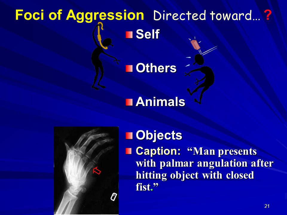 "21 Foci of Aggression Directed toward… ? SelfOthersAnimalsObjects Caption: ""Man presents with palmar angulation after hitting object with closed fist."