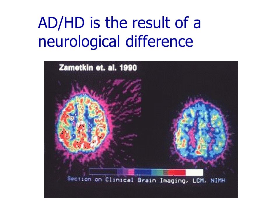AD/HD is the result of a neurological difference