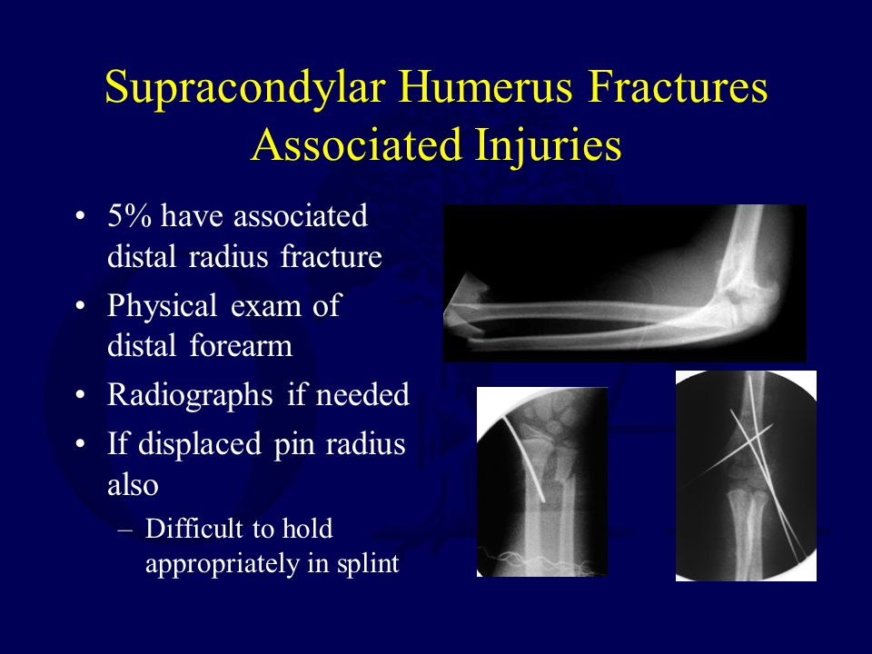Supracondylar Humerus Fractures Associated Injuries 5% have associated distal radius fracture Physical exam of distal forearm Radiographs if needed If
