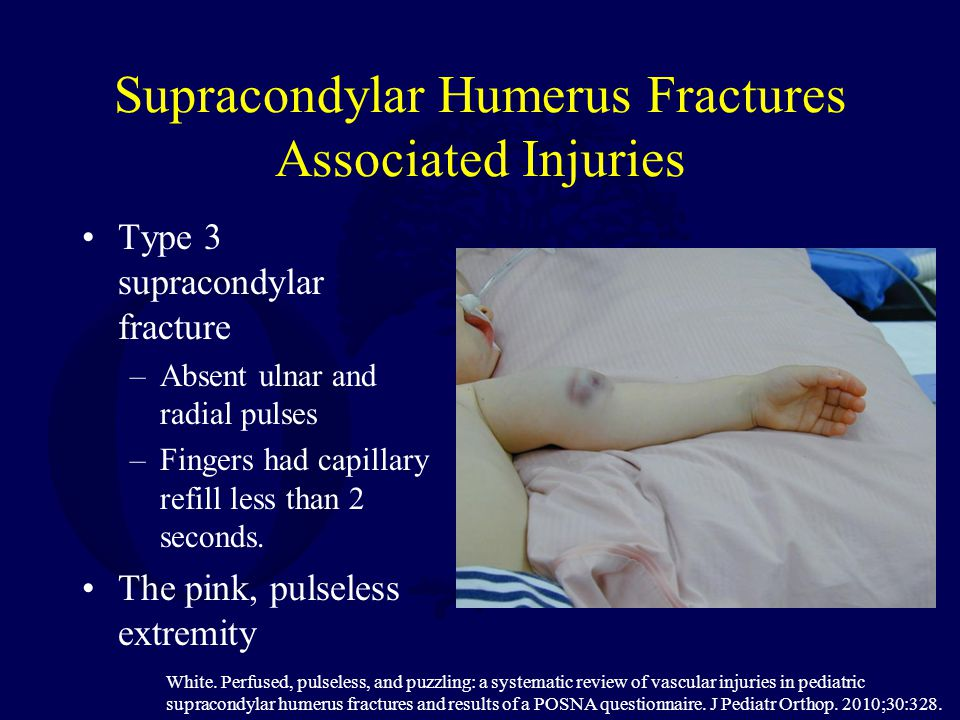 Supracondylar Humerus Fractures Associated Injuries Type 3 supracondylar fracture –Absent ulnar and radial pulses –Fingers had capillary refill less t