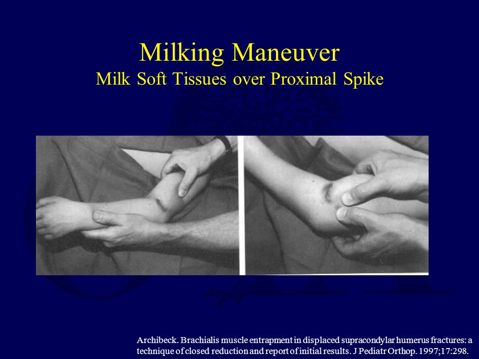 Milking Maneuver Milk Soft Tissues over Proximal Spike Archibeck. Brachialis muscle entrapment in displaced supracondylar humerus fractures: a techniq