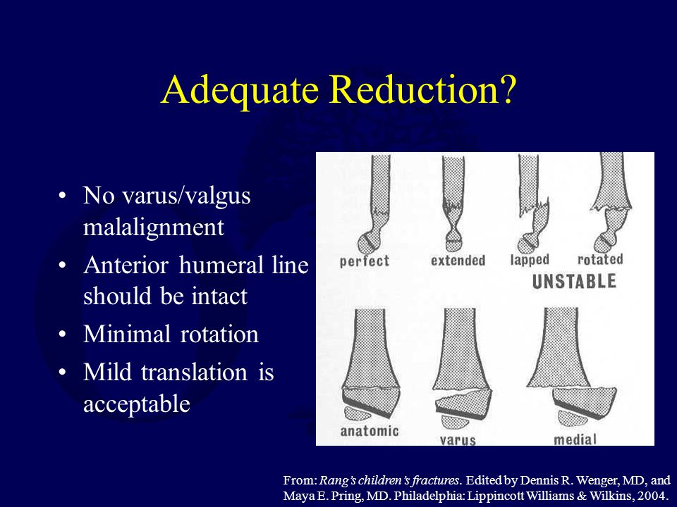 Adequate Reduction? No varus/valgus malalignment Anterior humeral line should be intact Minimal rotation Mild translation is acceptable From: Rang's c