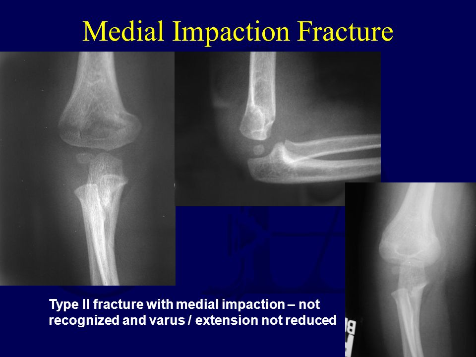 Medial Impaction Fracture Type II fracture with medial impaction – not recognized and varus / extension not reduced