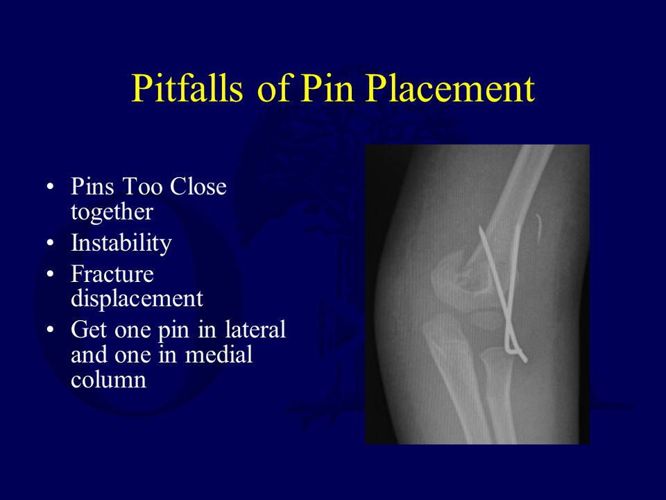 Pitfalls of Pin Placement Pins Too Close together Instability Fracture displacement Get one pin in lateral and one in medial column