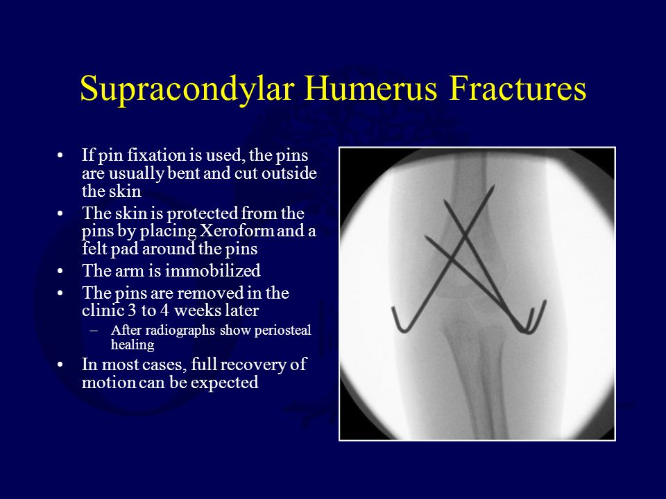 Supracondylar Humerus Fractures If pin fixation is used, the pins are usually bent and cut outside the skin The skin is protected from the pins by pla