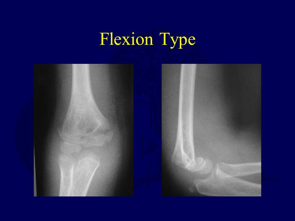 Flexion Type
