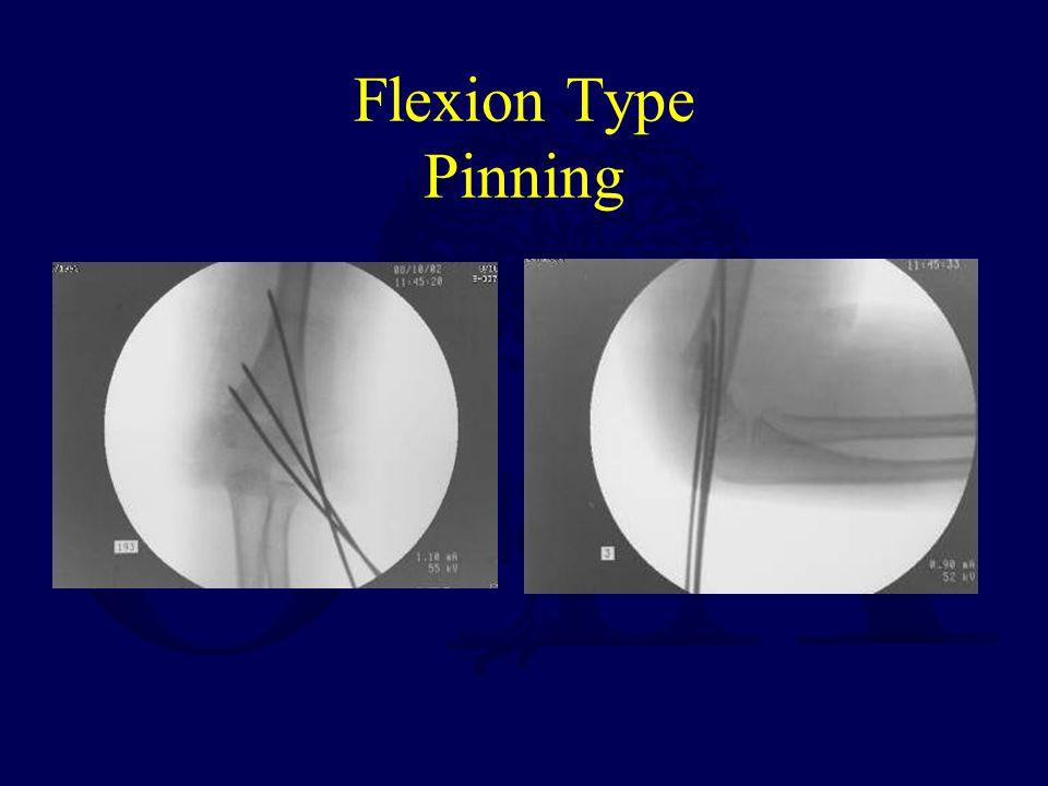 Flexion Type Pinning