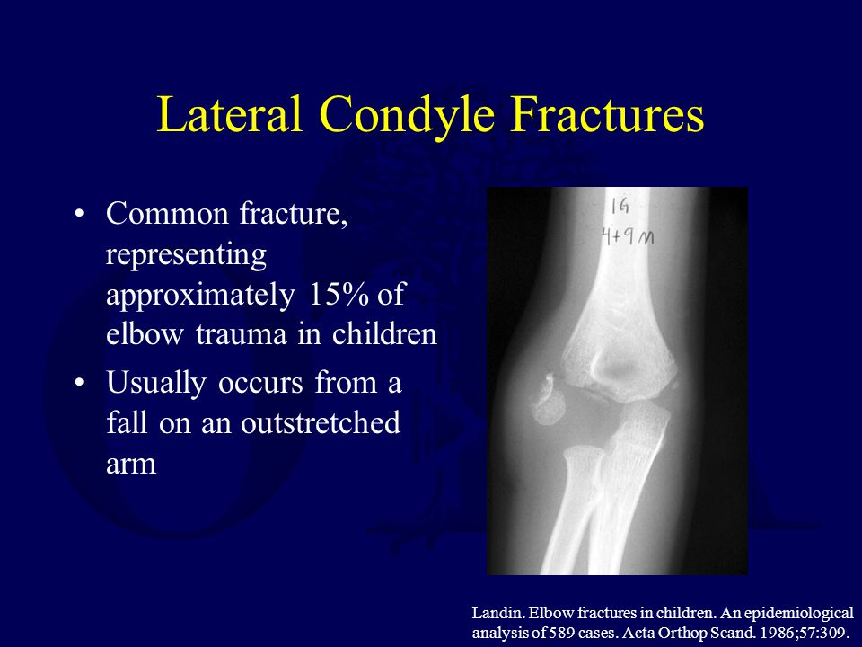 Lateral Condyle Fractures Common fracture, representing approximately 15% of elbow trauma in children Usually occurs from a fall on an outstretched ar
