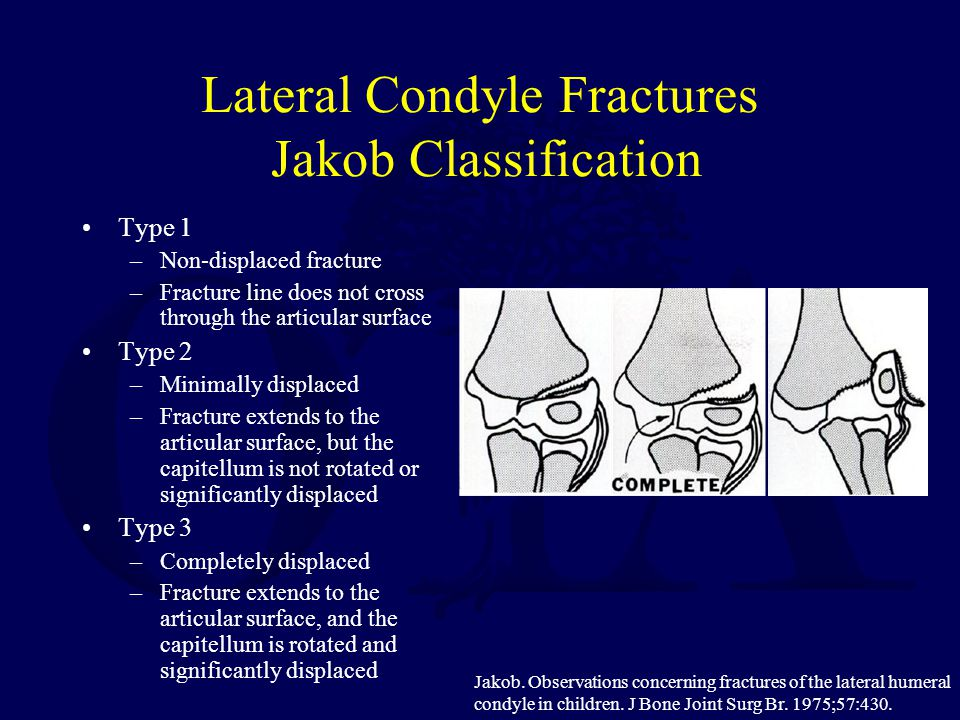Lateral Condyle Fractures Jakob Classification Type 1 –Non-displaced fracture –Fracture line does not cross through the articular surface Type 2 –Mini
