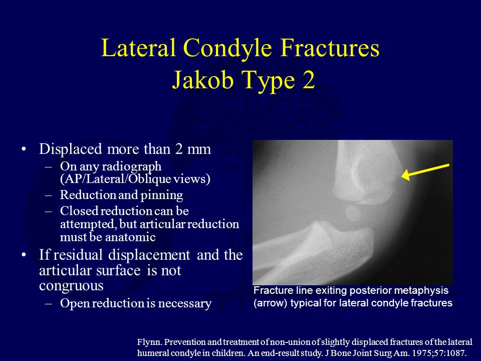 Lateral Condyle Fractures Jakob Type 2 Displaced more than 2 mm –On any radiograph (AP/Lateral/Oblique views) –Reduction and pinning –Closed reduction