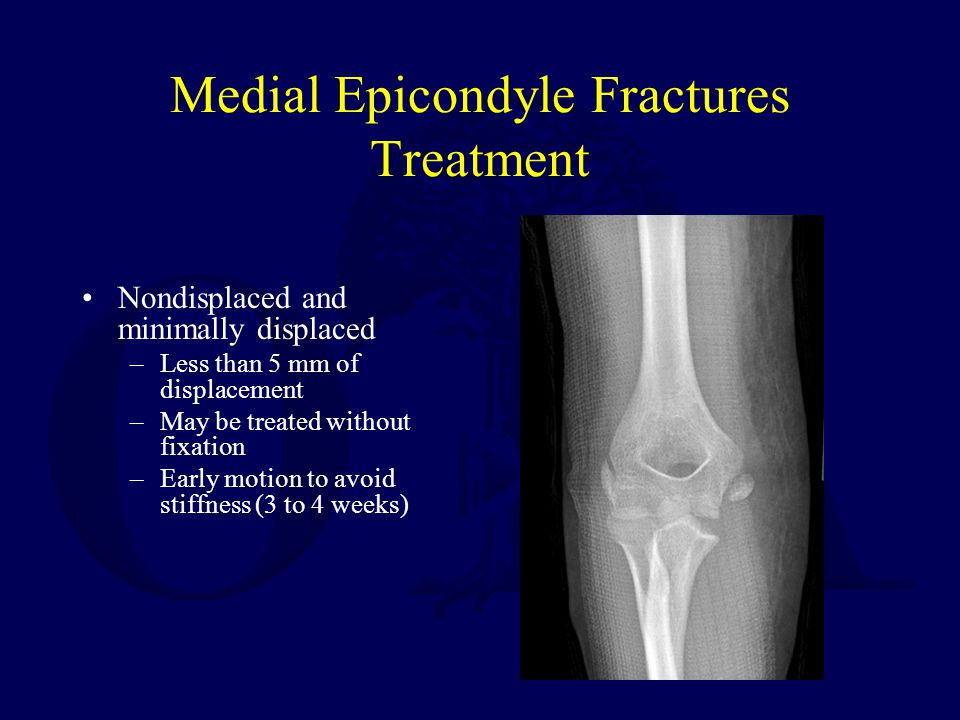 Medial Epicondyle Fractures Treatment Nondisplaced and minimally displaced –Less than 5 mm of displacement –May be treated without fixation –Early mot