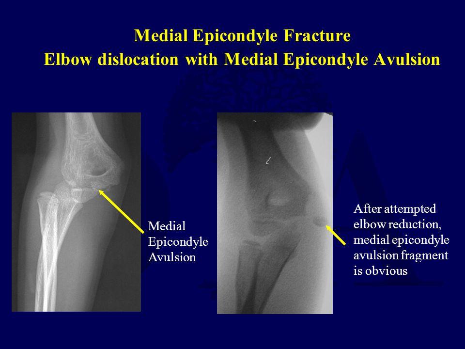 Medial Epicondyle Fracture Elbow dislocation with Medial Epicondyle Avulsion Medial Epicondyle Avulsion After attempted elbow reduction, medial epicon