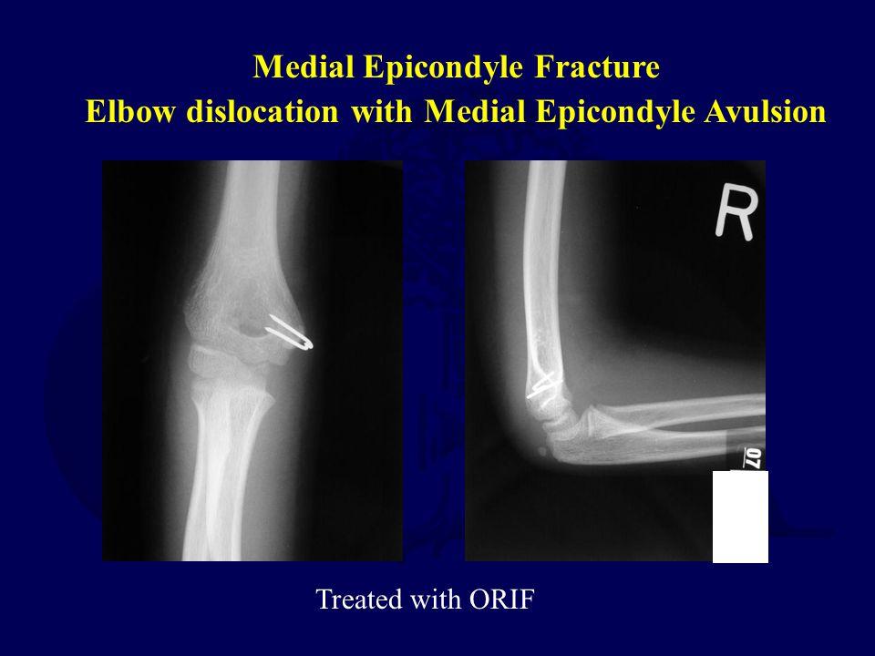 Medial Epicondyle Fracture Elbow dislocation with Medial Epicondyle Avulsion Treated with ORIF