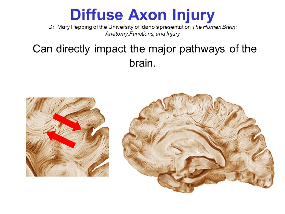 Brain & Skull Dr. Mary Pepping of the University of Idaho's presentation The Human Brain: Anatomy,Functions, and Injury Injury to frontal lobe from co