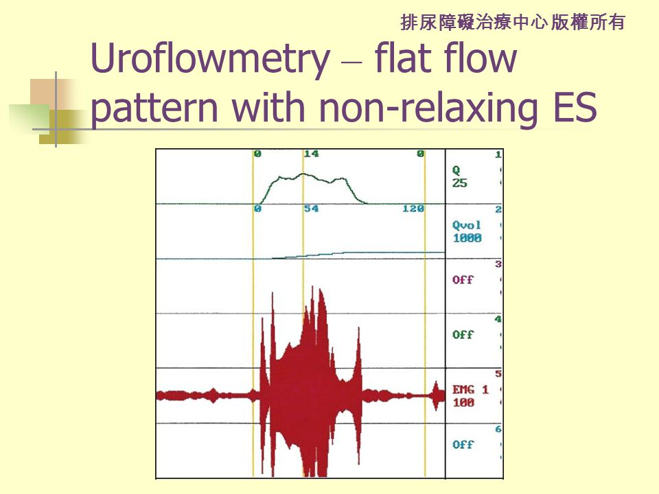 排尿障礙治療中心 版權所有 Uroflowmetry – flat flow pattern with non-relaxing ES
