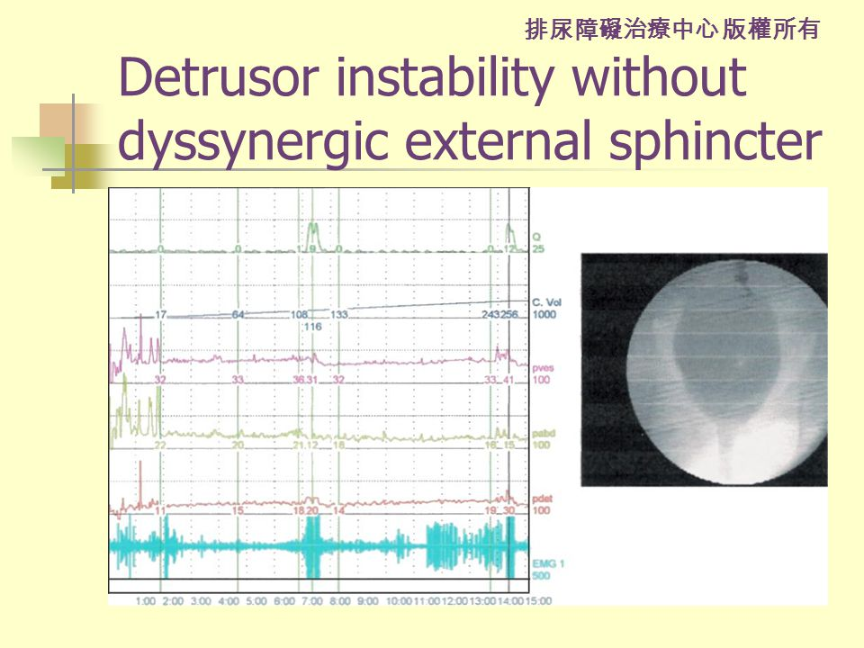 排尿障礙治療中心 版權所有 Detrusor instability without dyssynergic external sphincter