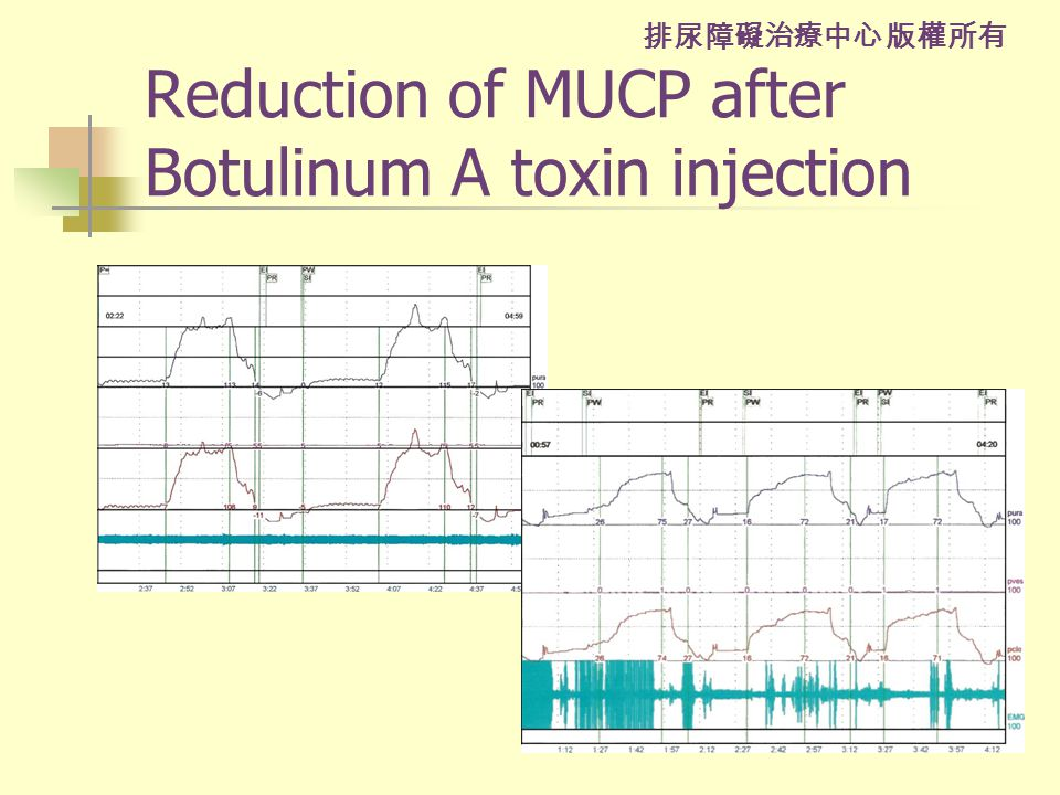 排尿障礙治療中心 版權所有 Reduction of MUCP after Botulinum A toxin injection