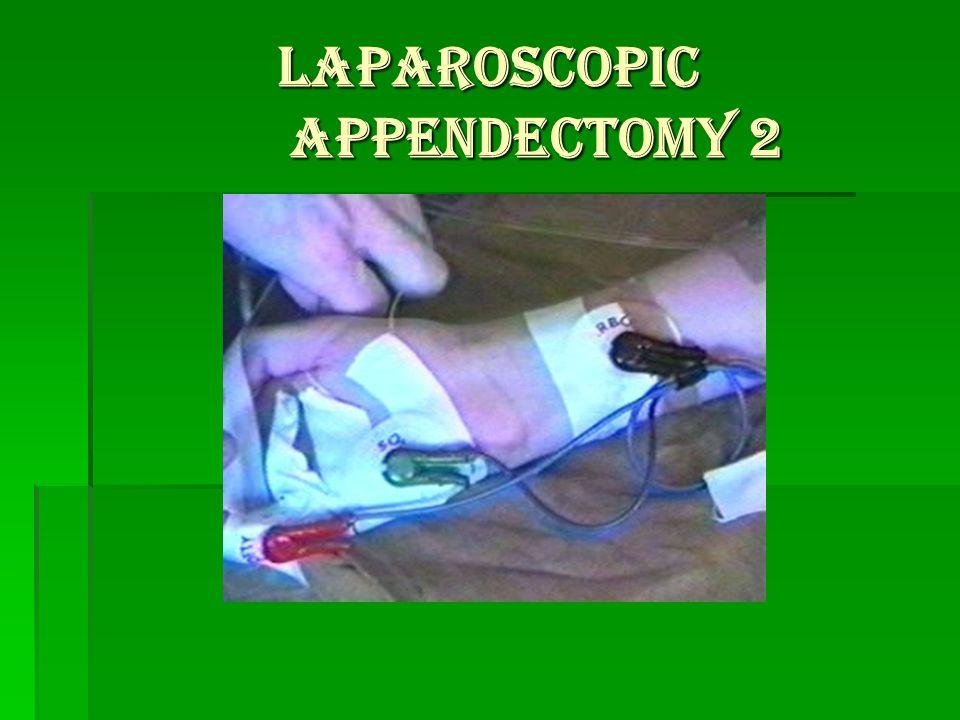 LAPAROSCOPIC APPENDECTOMY 2