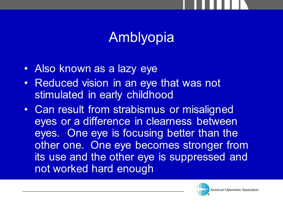 Amblyopia Also known as a lazy eye Reduced vision in an eye that was not stimulated in early childhood Can result from strabismus or misaligned eyes o