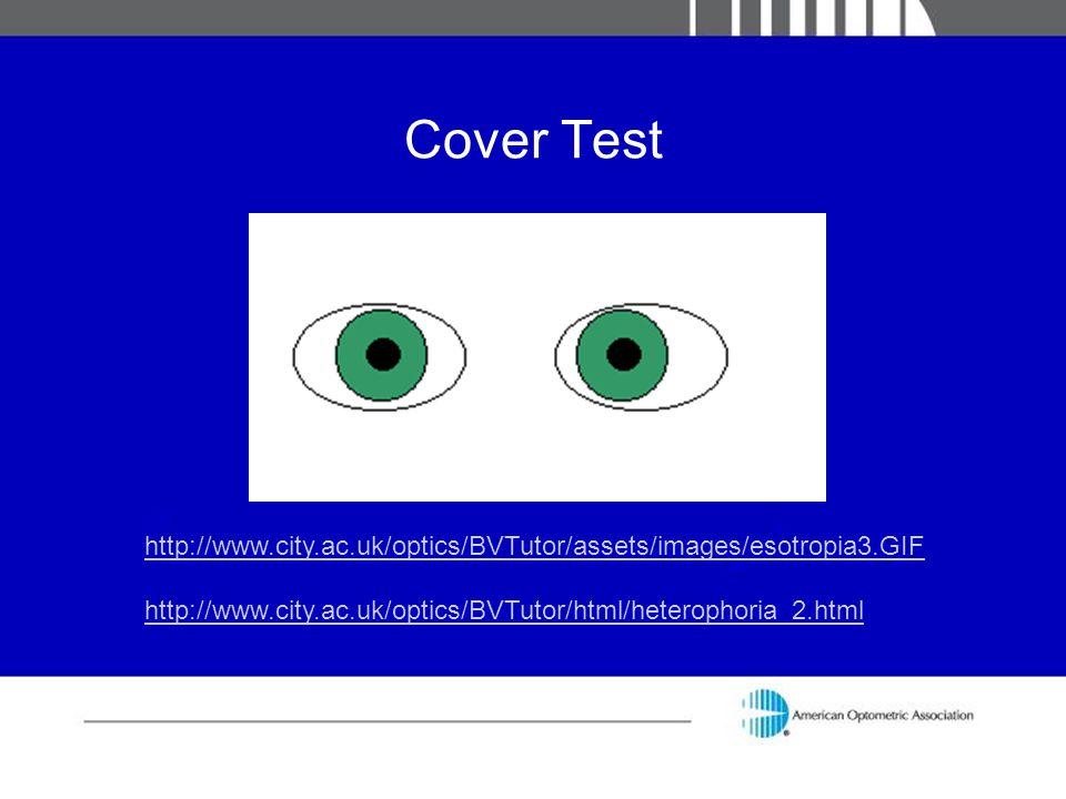 Cover Test http://www.city.ac.uk/optics/BVTutor/assets/images/esotropia3.GIF http://www.city.ac.uk/optics/BVTutor/html/heterophoria_2.html