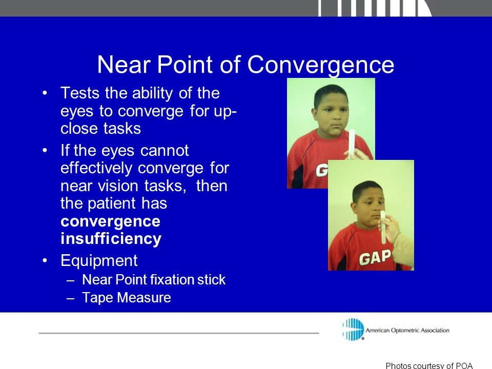 Near Point of Convergence Tests the ability of the eyes to converge for up- close tasks If the eyes cannot effectively converge for near vision tasks,