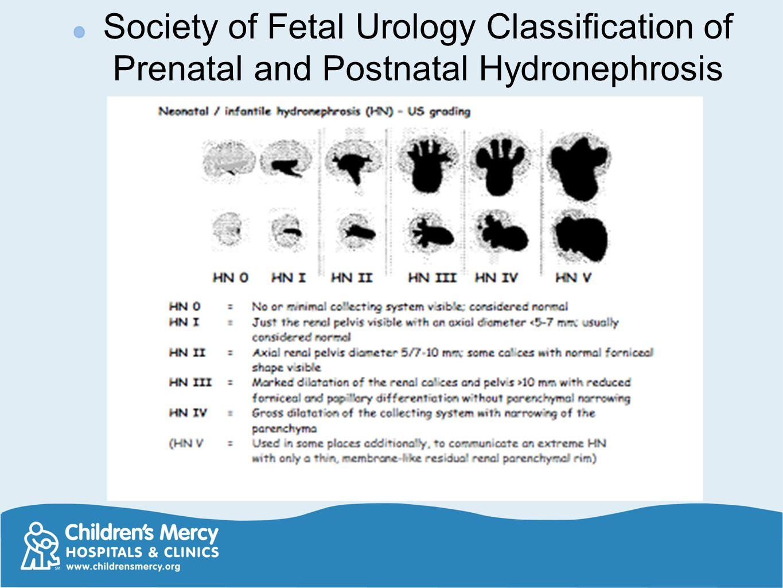 Society of Fetal Urology Classification of Prenatal and Postnatal Hydronephrosis