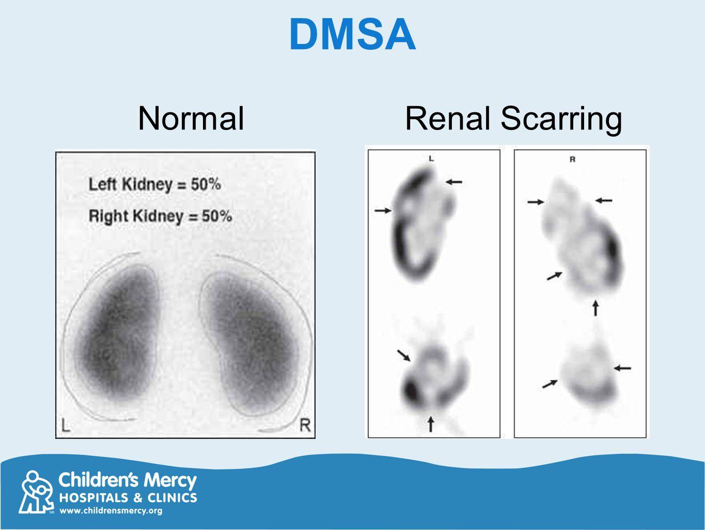 DMSA Normal Renal Scarring