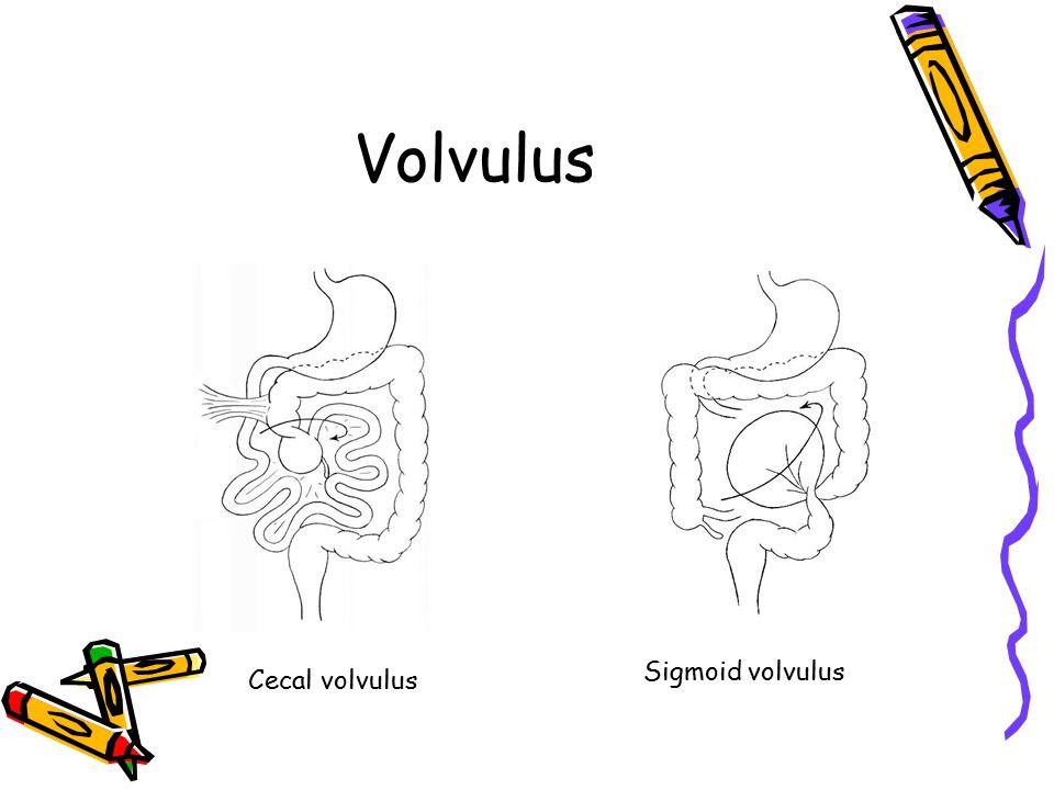 Volvulus Cecal volvulus Sigmoid volvulus