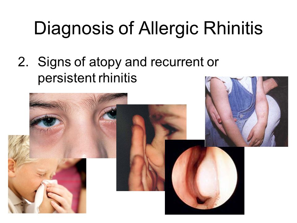 Diagnosis of Allergic Rhinitis 2.Signs of atopy and recurrent or persistent rhinitis