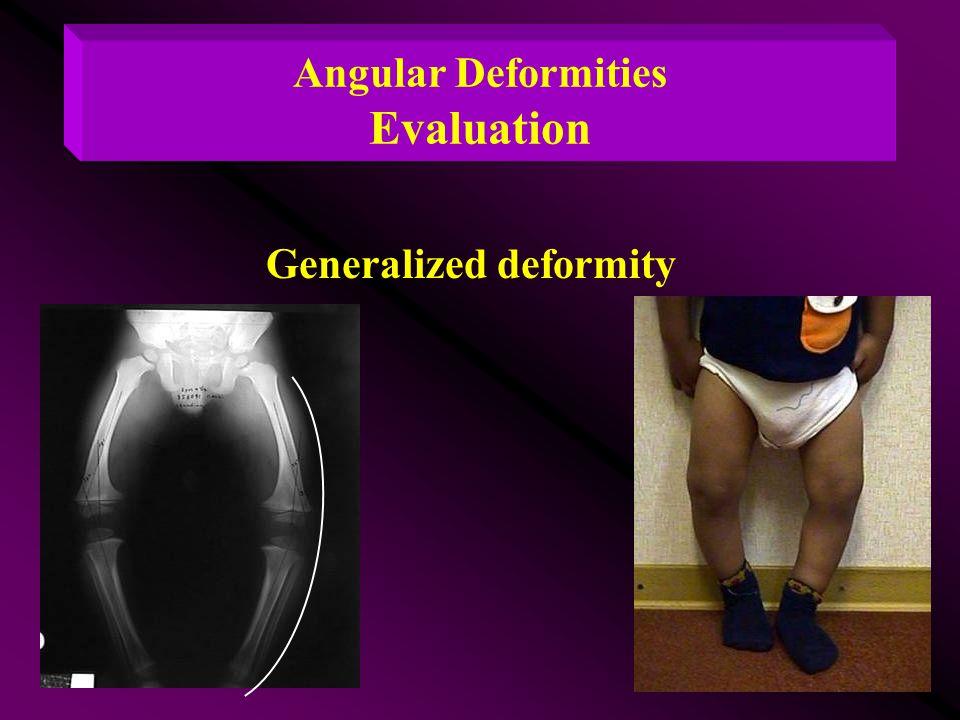 Angular Deformities Evaluation Generalized deformity