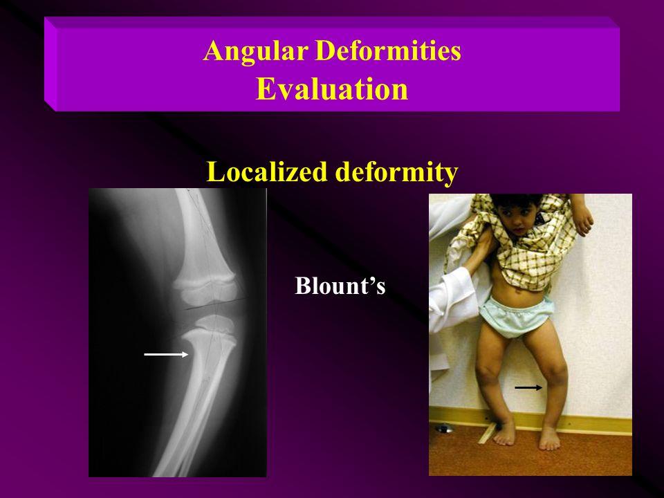 Angular Deformities Evaluation Localized deformity Blount's