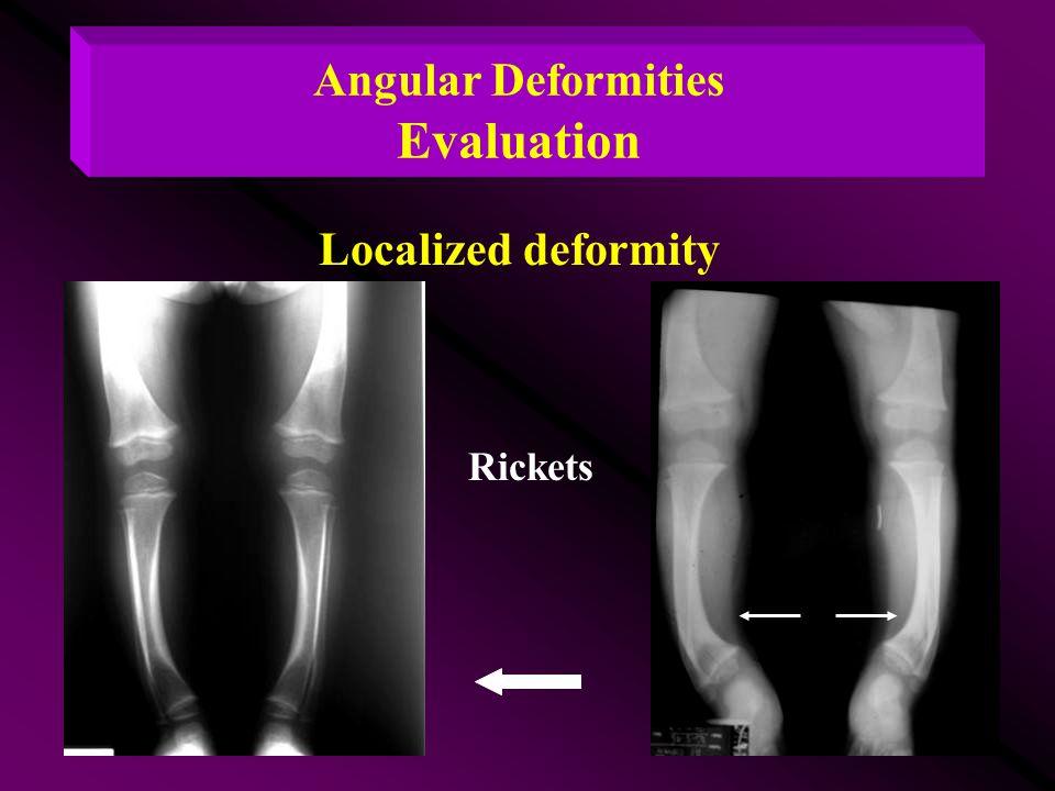 Angular Deformities Evaluation Rickets Localized deformity