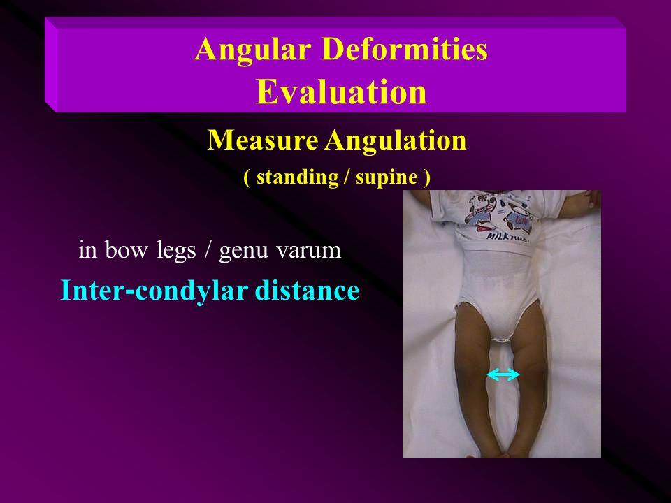 in bow legs / genu varum Inter-condylar distance Measure Angulation ( standing / supine ) Angular Deformities Evaluation