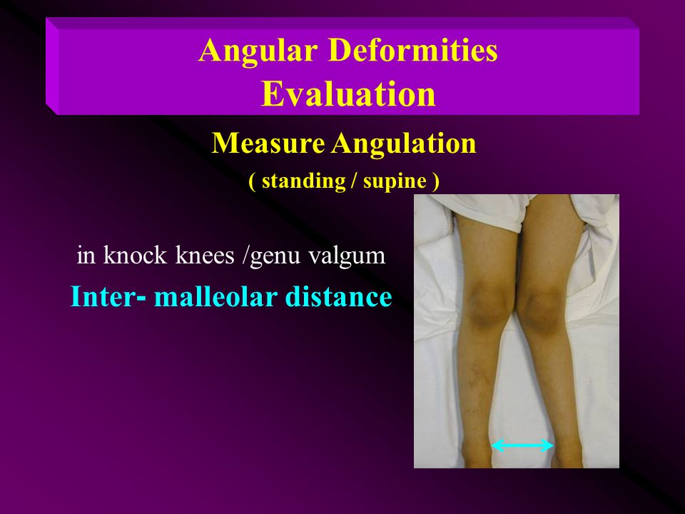 in knock knees /genu valgum Inter- malleolar distance Measure Angulation ( standing / supine ) Angular Deformities Evaluation