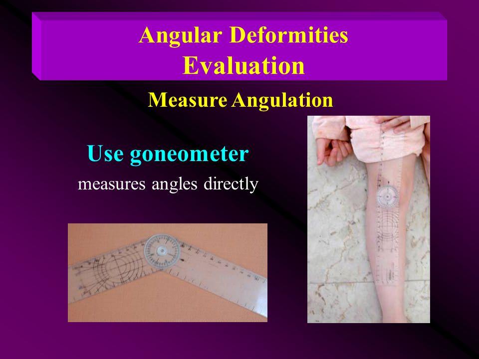 Measure Angulation Angular Deformities Evaluation Use goneometer measures angles directly