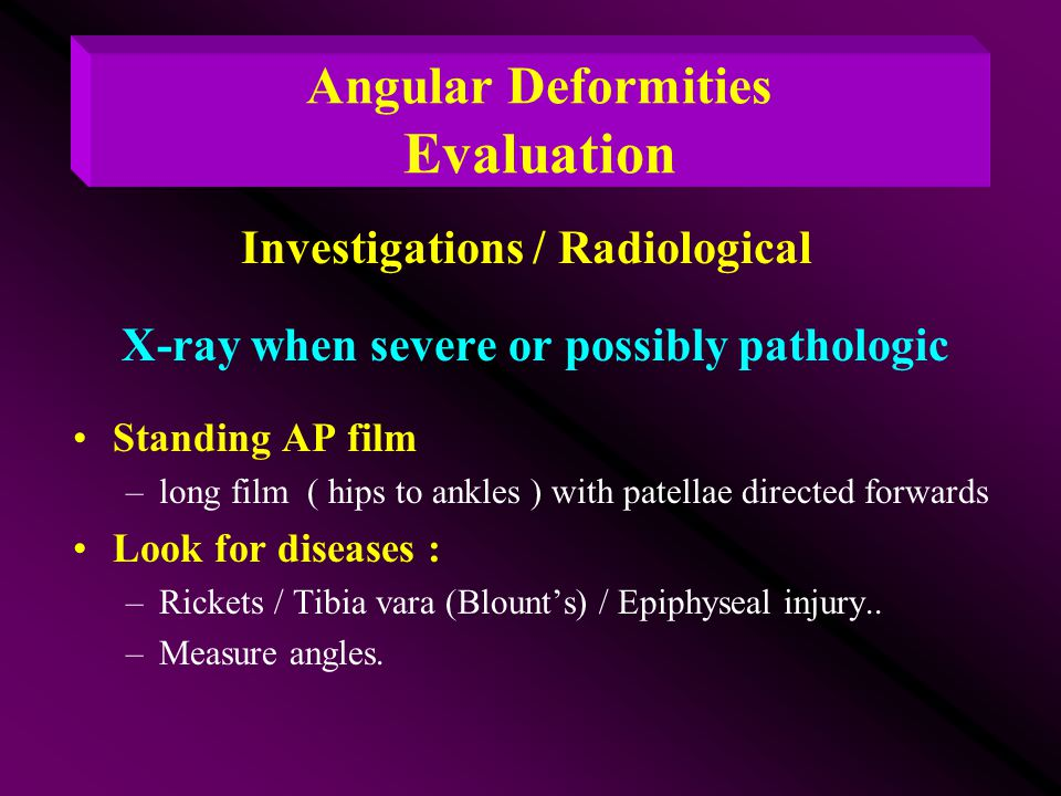 X-ray when severe or possibly pathologic Standing AP film –long film ( hips to ankles ) with patellae directed forwards Look for diseases : –Rickets /