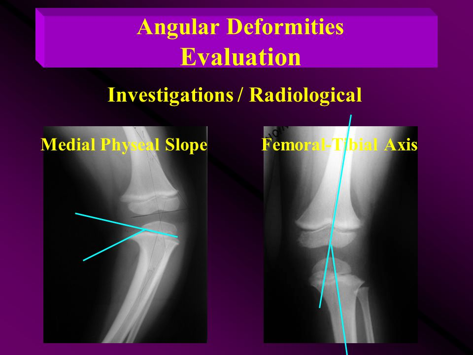 Femoral-Tibial AxisMedial Physeal Slope Angular Deformities Evaluation Investigations / Radiological