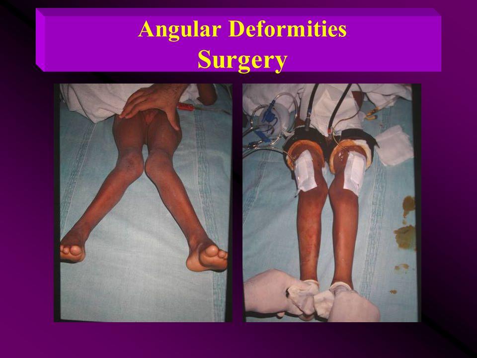 Angular Deformities Surgery