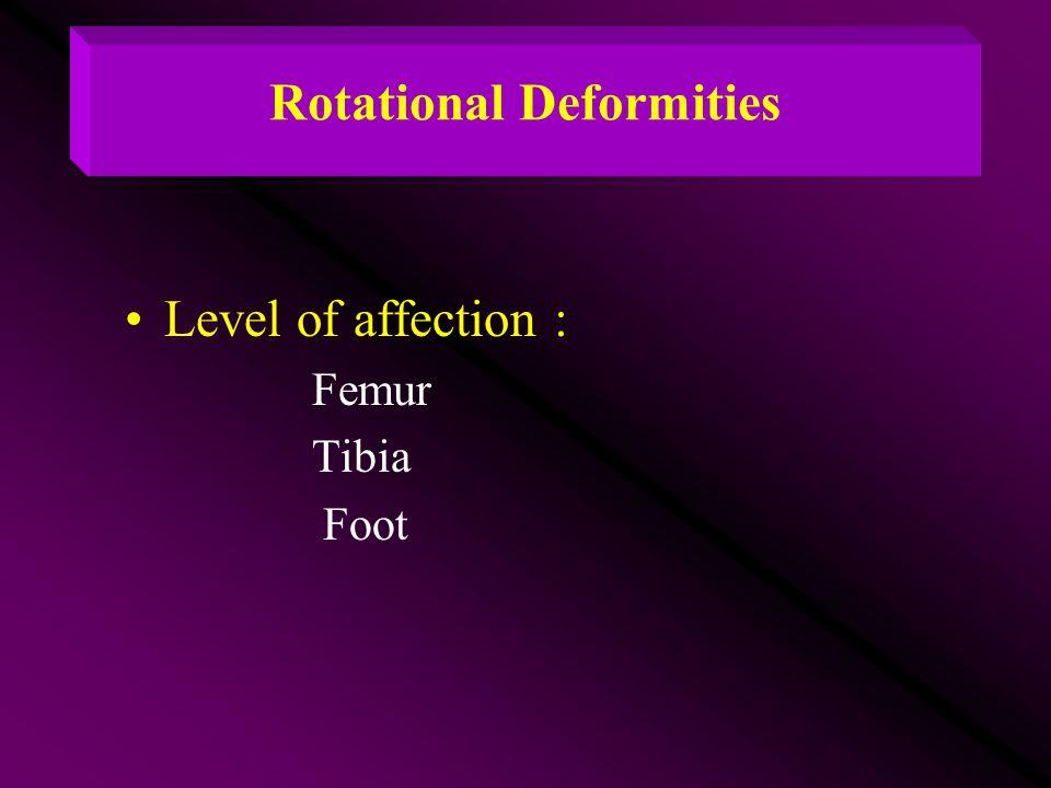 Rotational Deformities Level of affection : Femur Tibia Foot