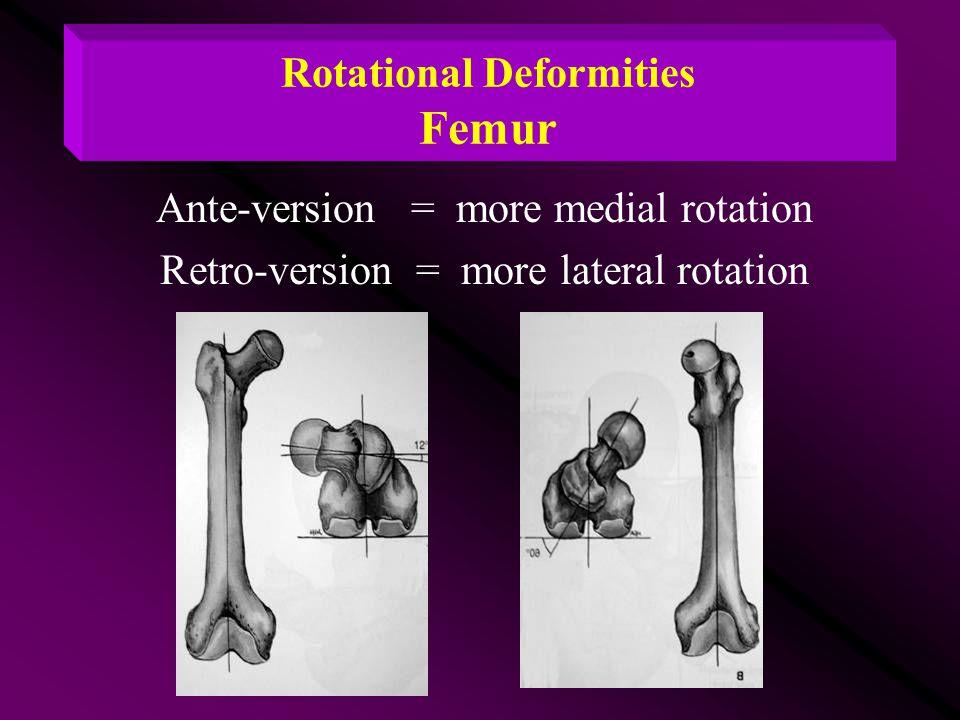 Rotational Deformities Femur Ante-version = more medial rotation Retro-version = more lateral rotation