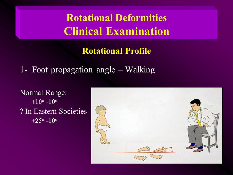 Rotational Deformities Clinical Examination Rotational Profile 1- Foot propagation angle – Walking Normal Range: +10 o _ 10 o ? In Eastern Societies +