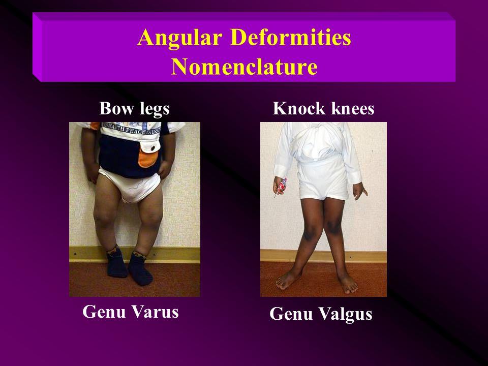 Angular Deformities Nomenclature Bow legsKnock knees Genu Varus Genu Valgus
