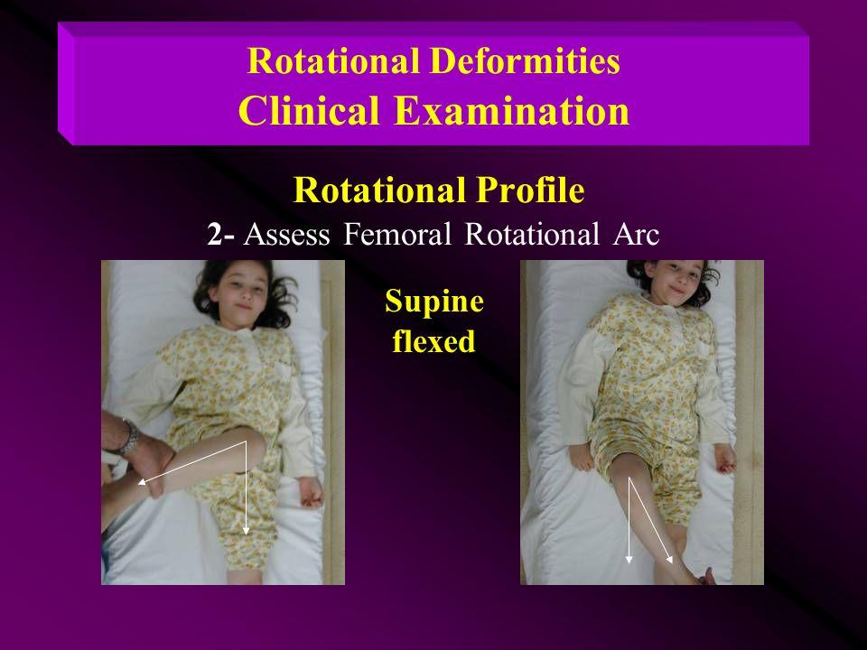 Rotational Deformities Clinical Examination Rotational Profile 2- Assess Femoral Rotational Arc Supine flexed