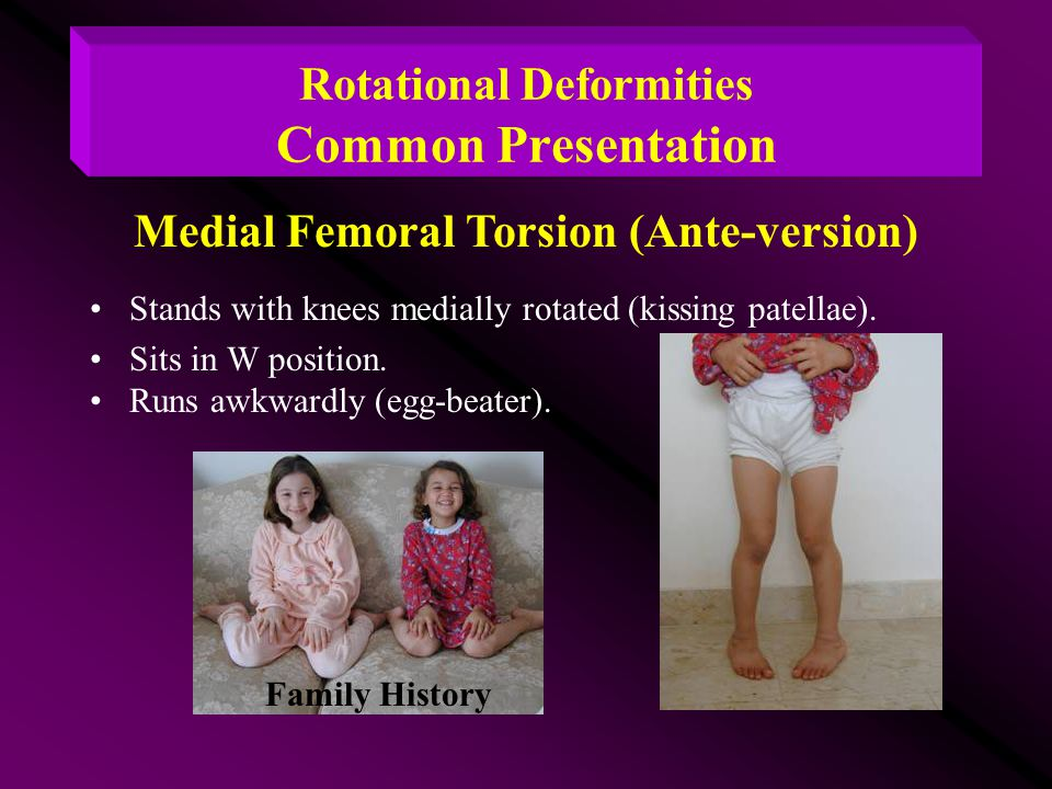 Rotational Deformities Common Presentation Stands with knees medially rotated (kissing patellae). Sits in W position. Runs awkwardly (egg-beater). Fam