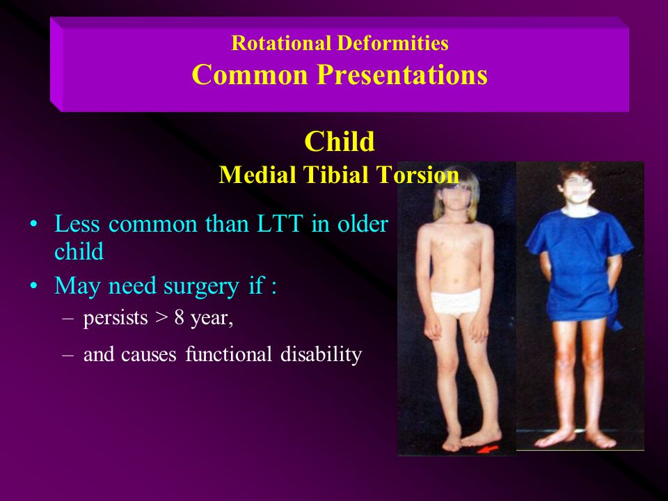 Rotational Deformities Common Presentations Child Medial Tibial Torsion Less common than LTT in older child May need surgery if : –persists > 8 year,