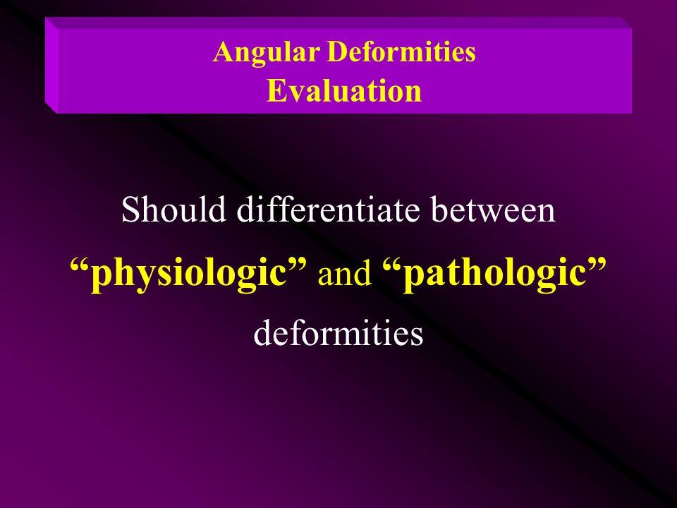 "Angular Deformities Evaluation Should differentiate between ""physiologic"" and ""pathologic"" deformities"