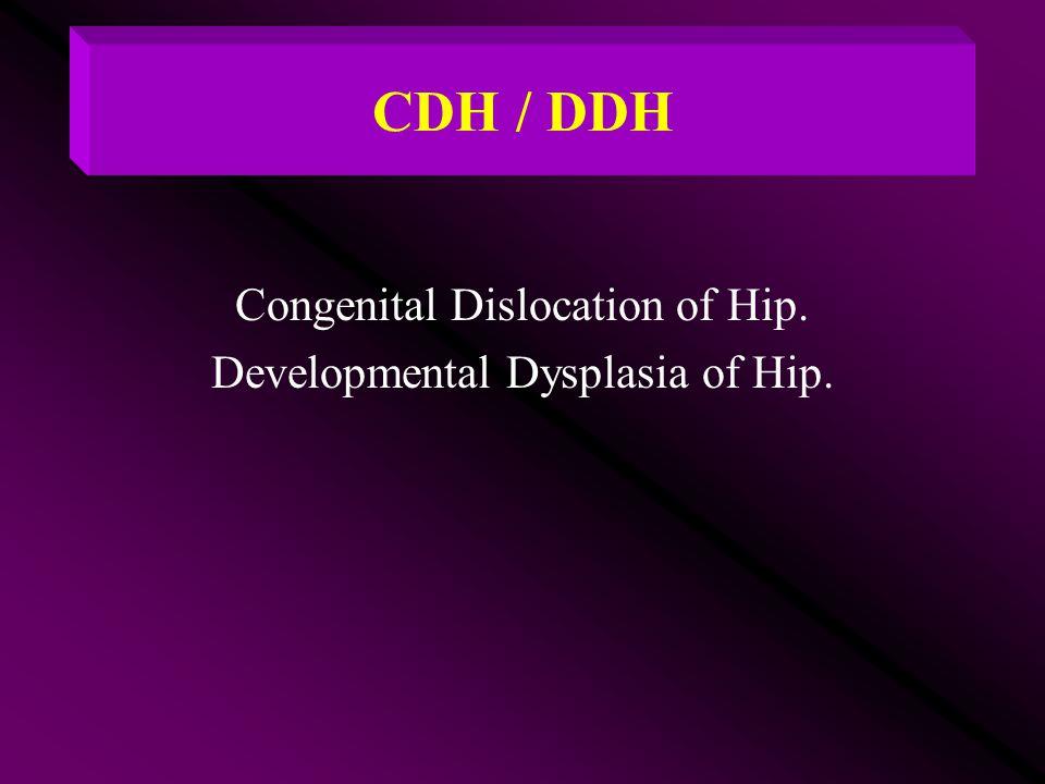 CDH / DDH Congenital Dislocation of Hip. Developmental Dysplasia of Hip.