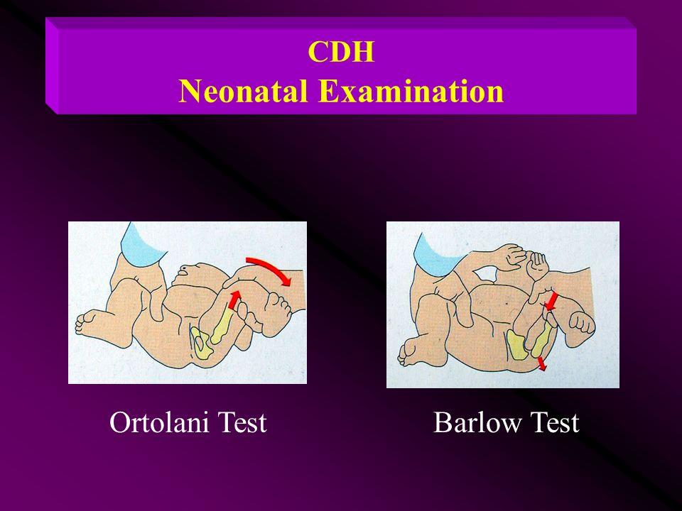 CDH Neonatal Examination Ortolani TestBarlow Test
