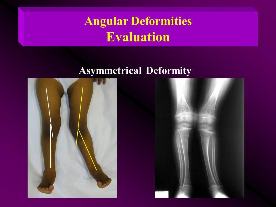 Angular Deformities Evaluation Asymmetrical Deformity
